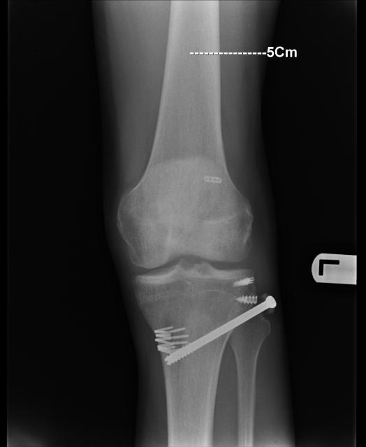Repair Fibular Avulsion