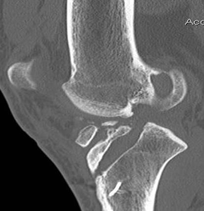 Revision ACL CT Sagittal 2