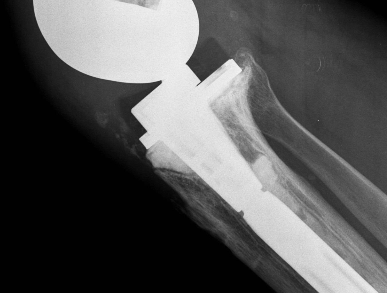 Revision TKR Bone Defect Cement Lateral.jpg