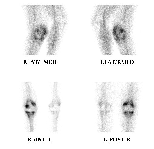 Revision TKR Infected Bone Scan