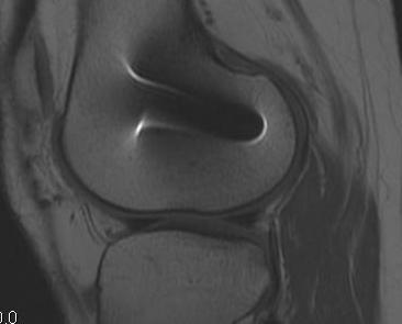 Revision ACL 2 MRI