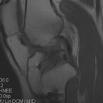 Revision ACL 2 MRI 2