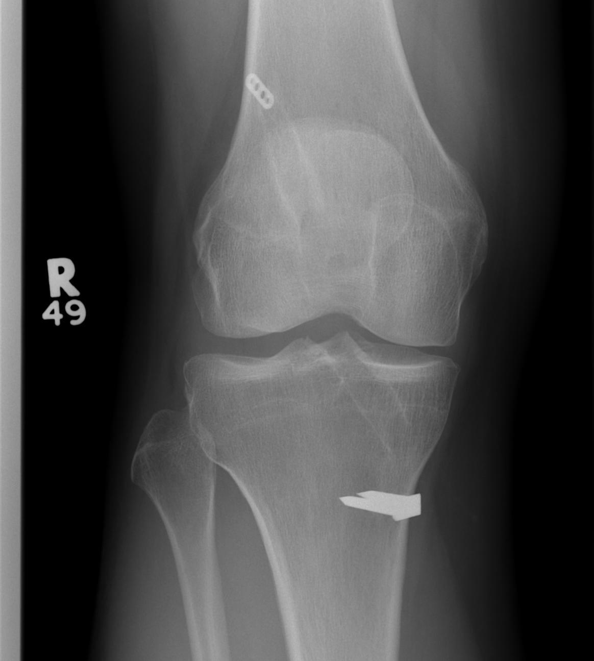Revision ACL Pre AP Xray