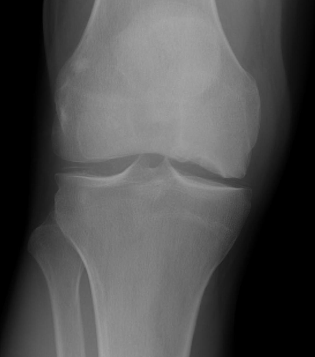 Spontaneous Osteonecrosis of the Knee