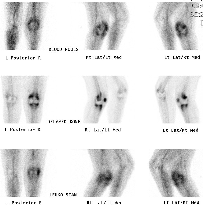 Bone Scan Infected TKR