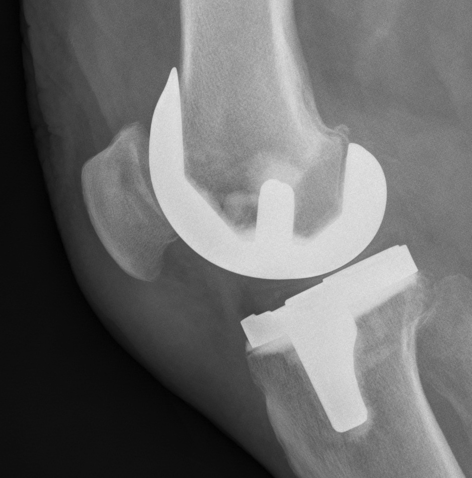 TKR Non Resurfaced Patella