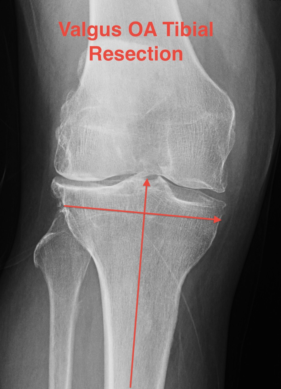 TKR Valgus OA Tibial Resection