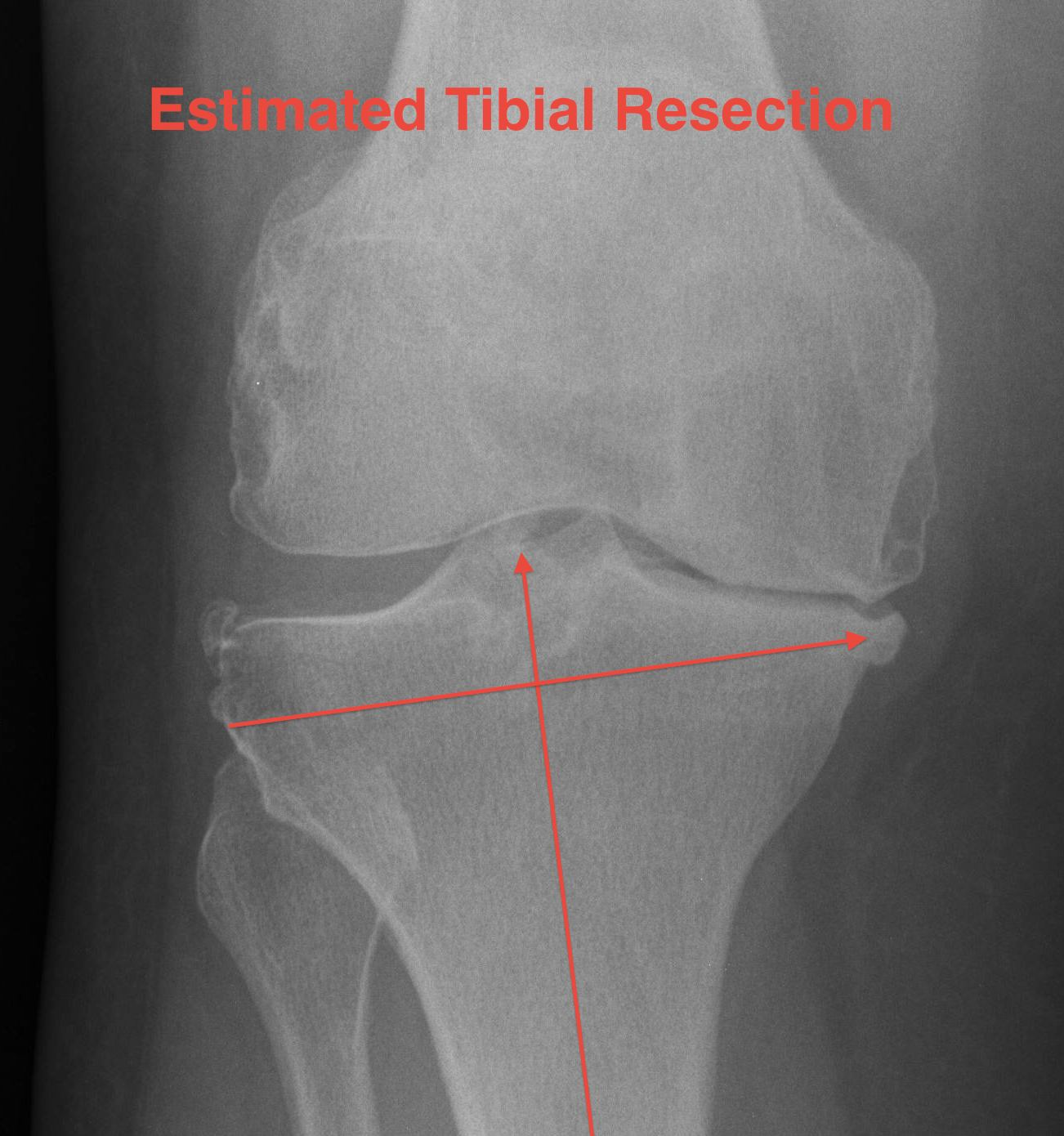 TKR Tibial Cut