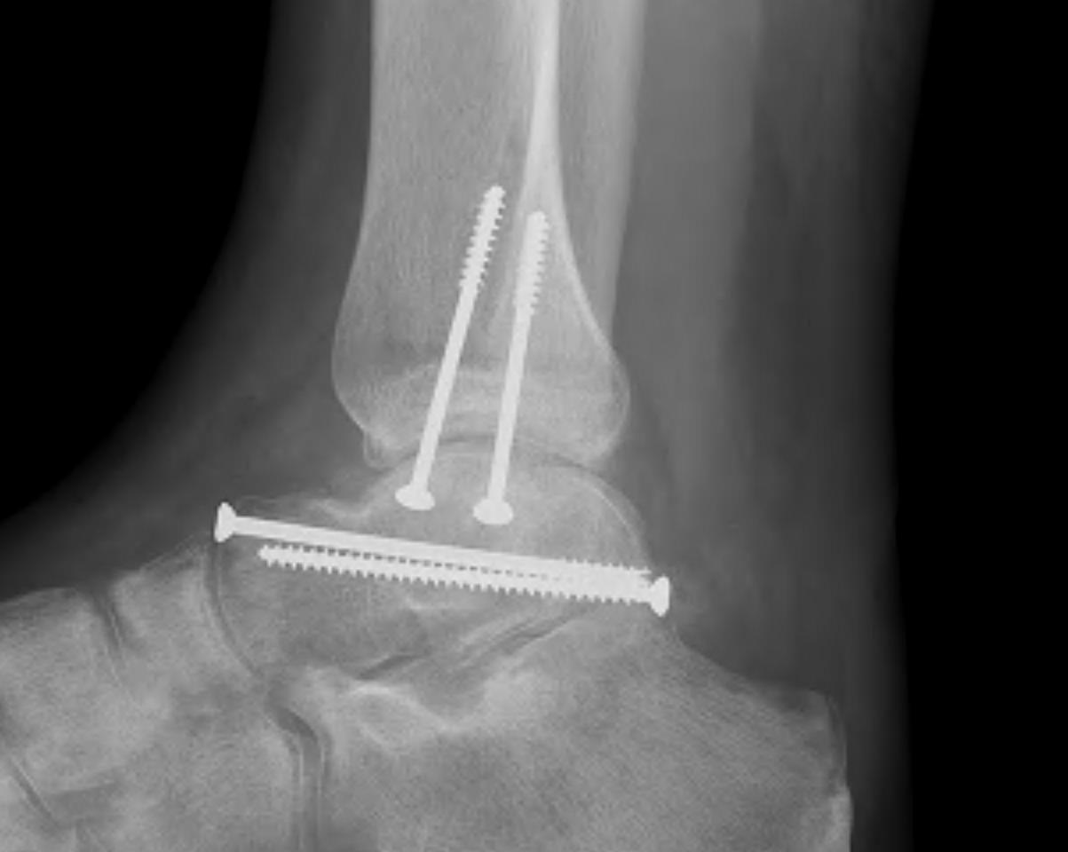 Talar Body Fracture | The Bone School