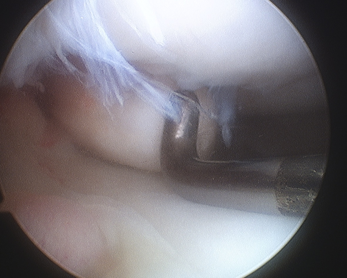 Femoral OCD Type 4 Non salvageable