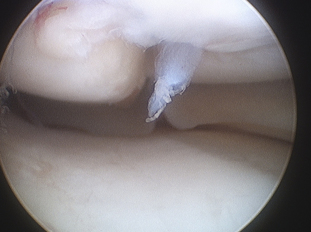 Type 4 Knee OCD Arthroscopy