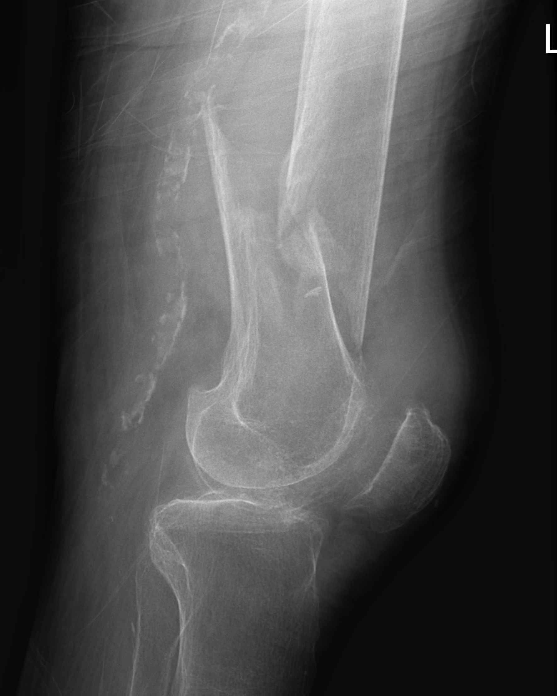 Distal Femur Fracture Lateral