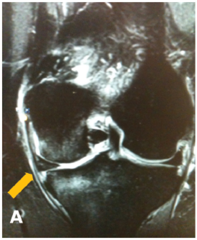 Meniscal Root Tear MRI
