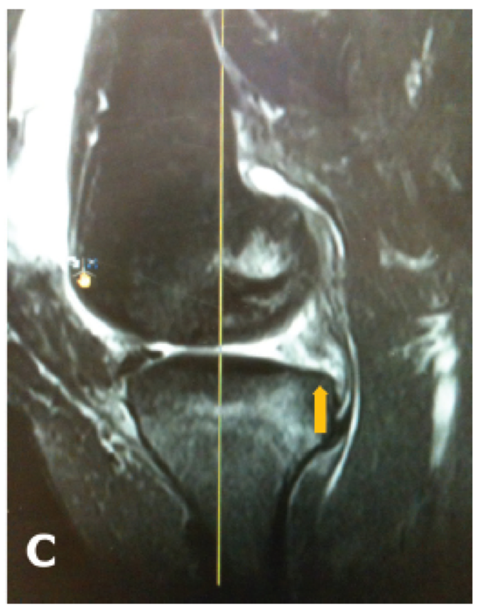 MRI Meniscal Root Tear 3