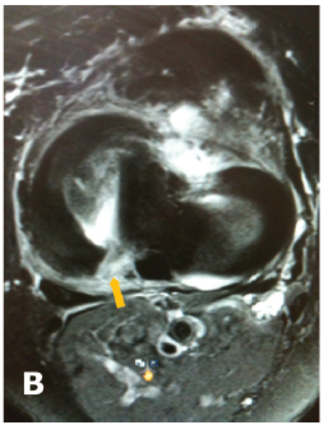 MRI Meniscal Root tear