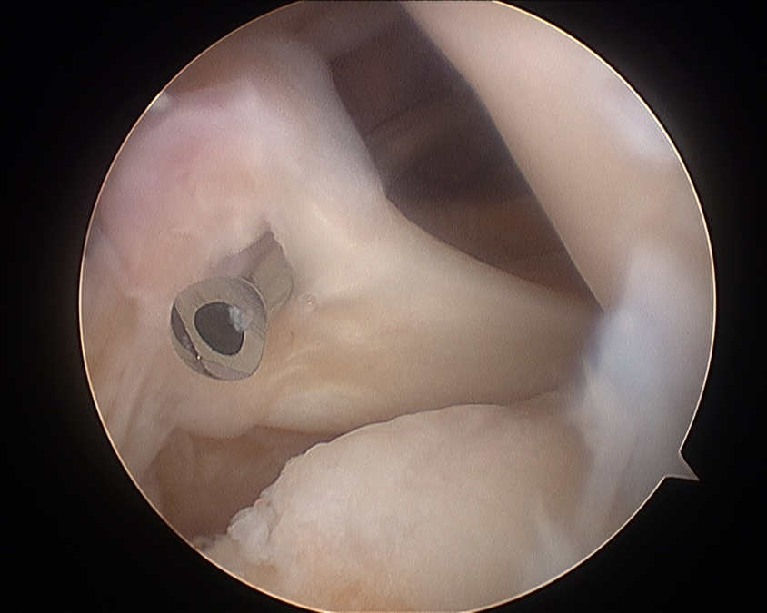 Meniscal Root Repair 3