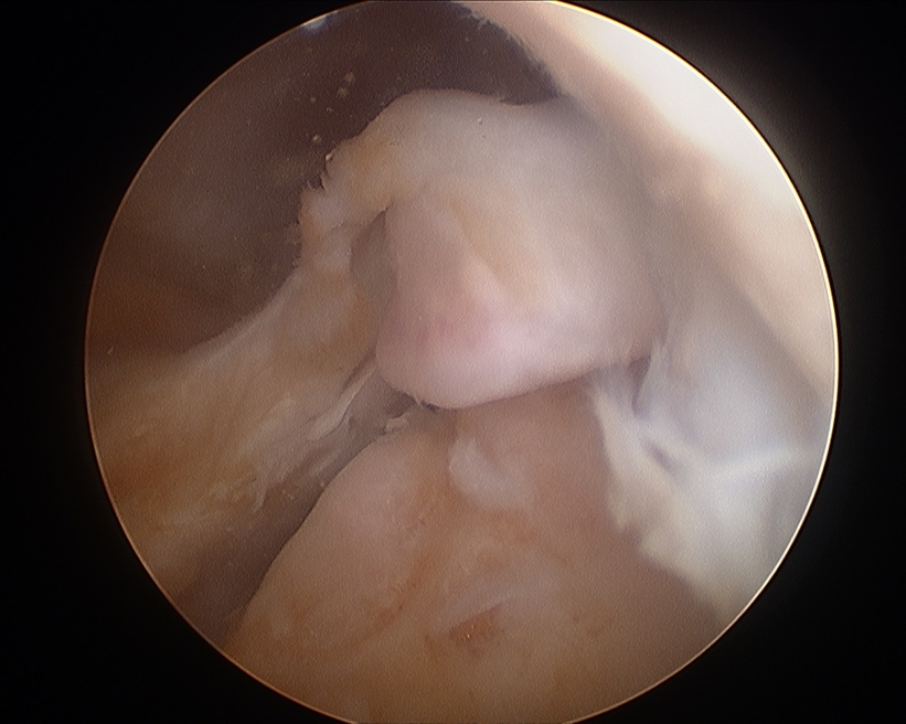 Meniscal Root Tear