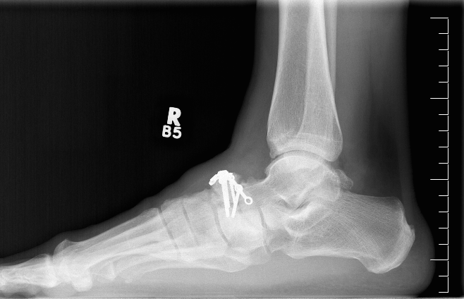 Navicular Fracture ORIF