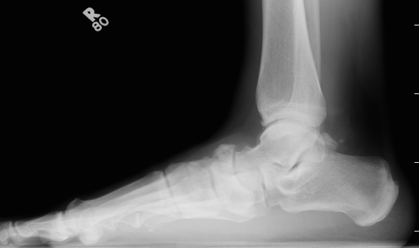 Navicular Fracture Lateral