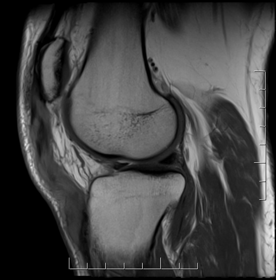 Chronic patella tendon rupture