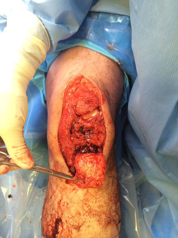 Chronic patella tendon rupture Hamstring Recon