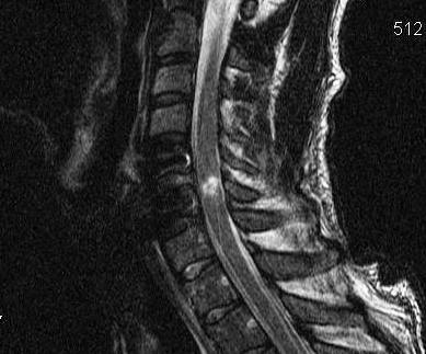 Cervical Cord Injury Post Unilateral Facet Dislocation