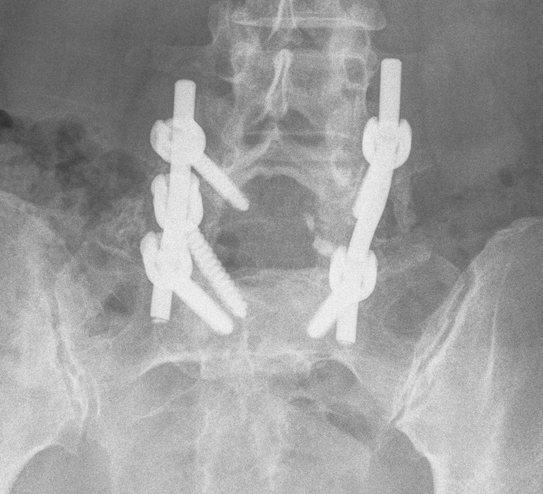 Spondylolithesis Transfixing Screw Lateral