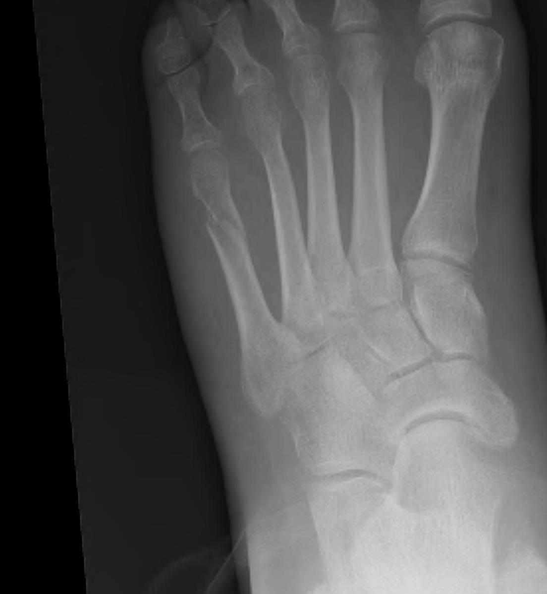 Fifth Metatarsal Neck Fracture