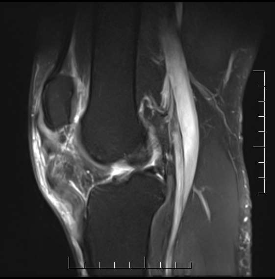 Patella Tendon Rupture MRI