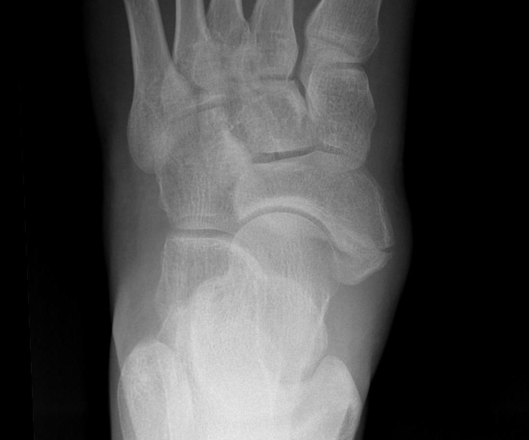 Accessory Navicular Fractured Synchondrosis