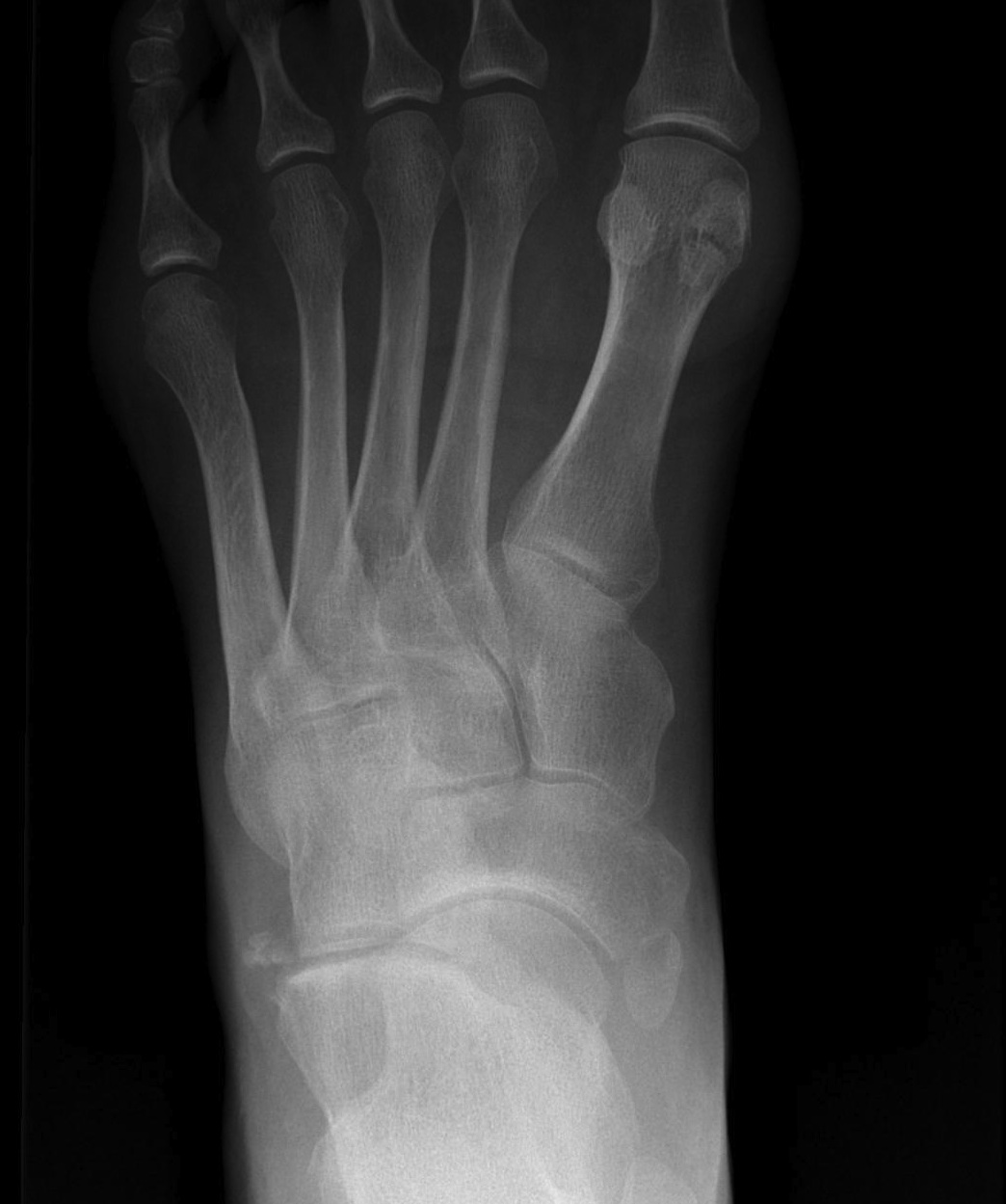 Accessory Navicular The Bone School Variants of number include partite bones, supernumerary bones, and absence of bones. the bone school