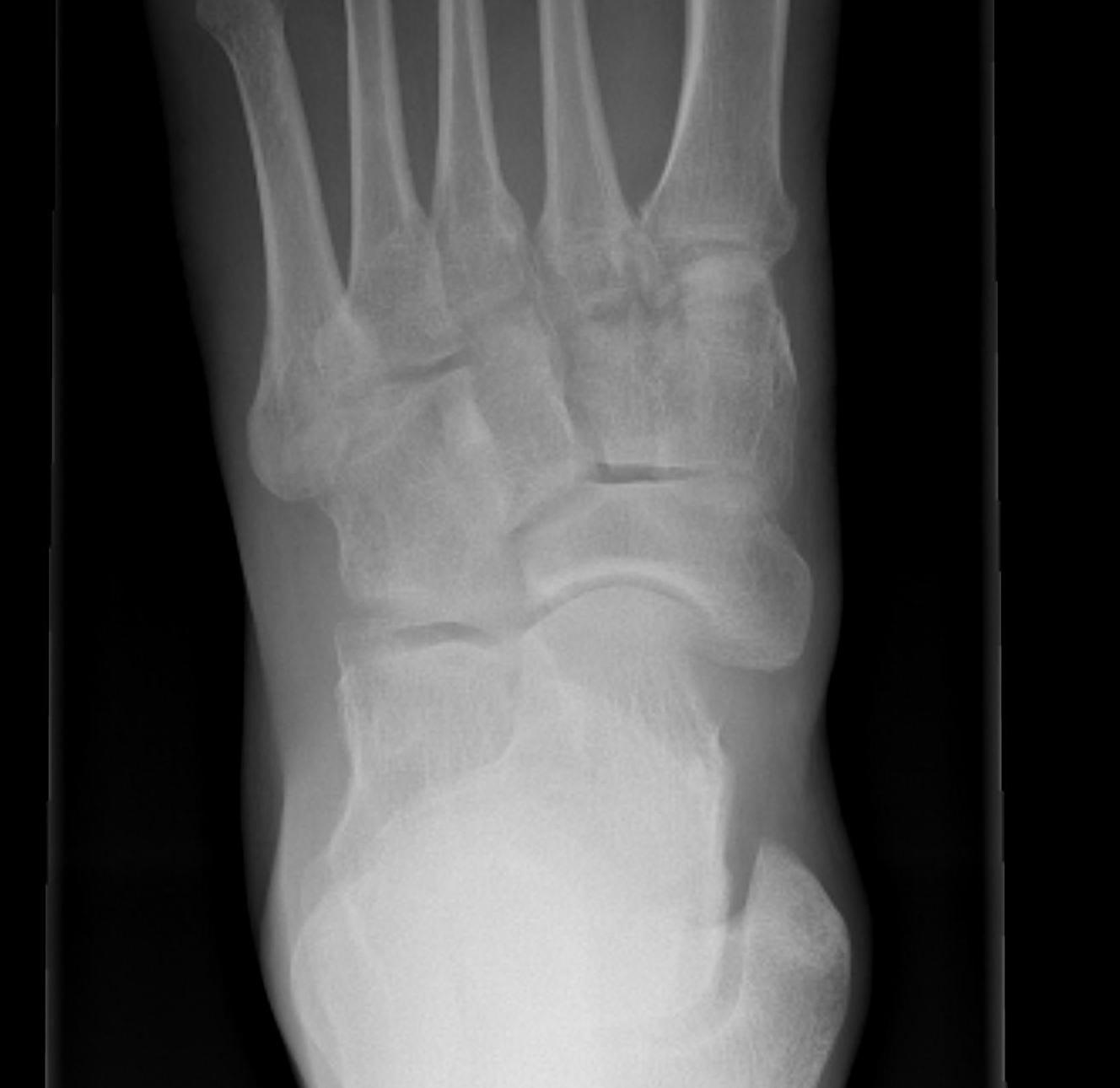 Accessory Navicular Cornuate