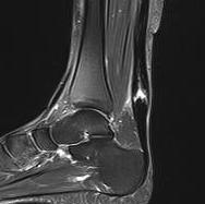 Achilles Tendon Rerupture0001