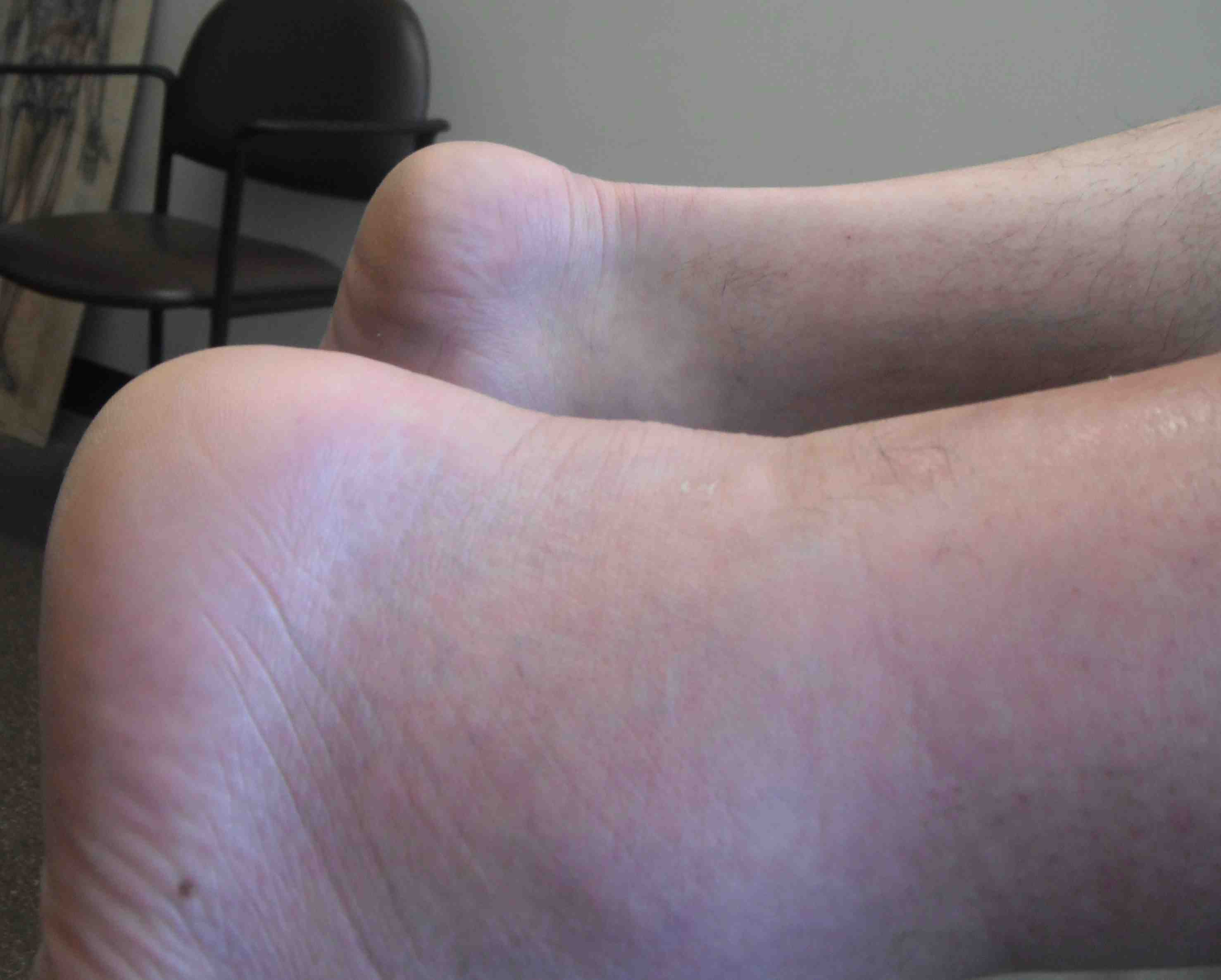 Achilles Tendon Rupture 1