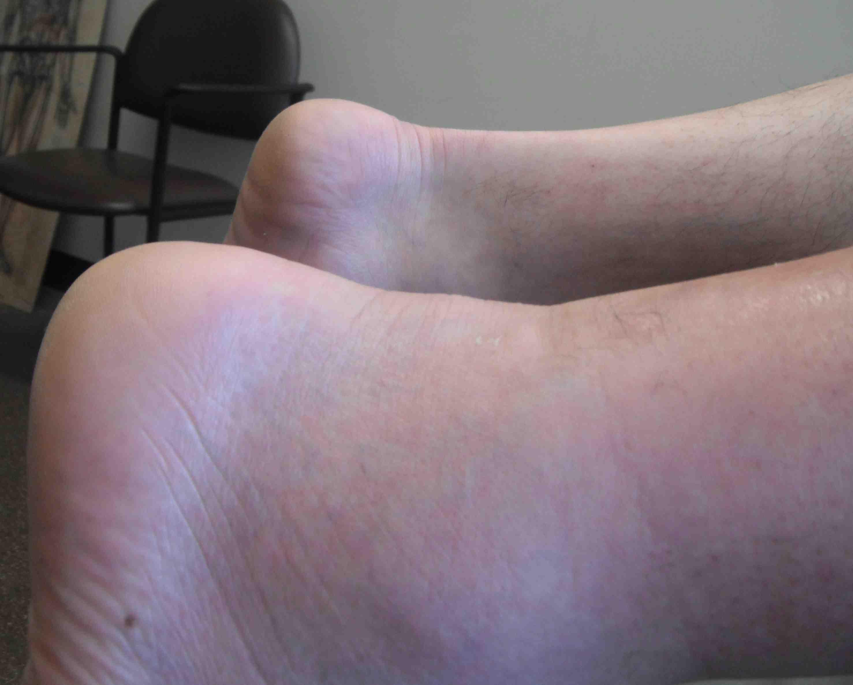 Boneschool.com - Online orthopaedic textbook