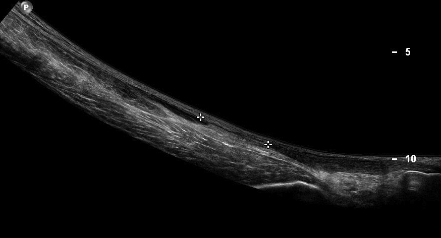 Acute Achilles Tendon Rupture Ultrasound