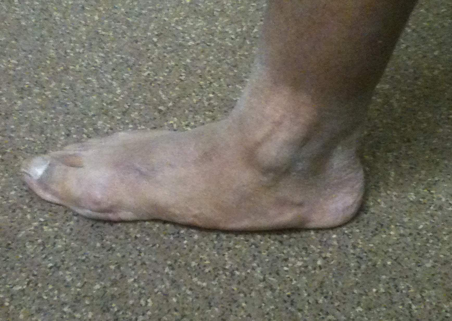 Adult Flatfoot Clinical