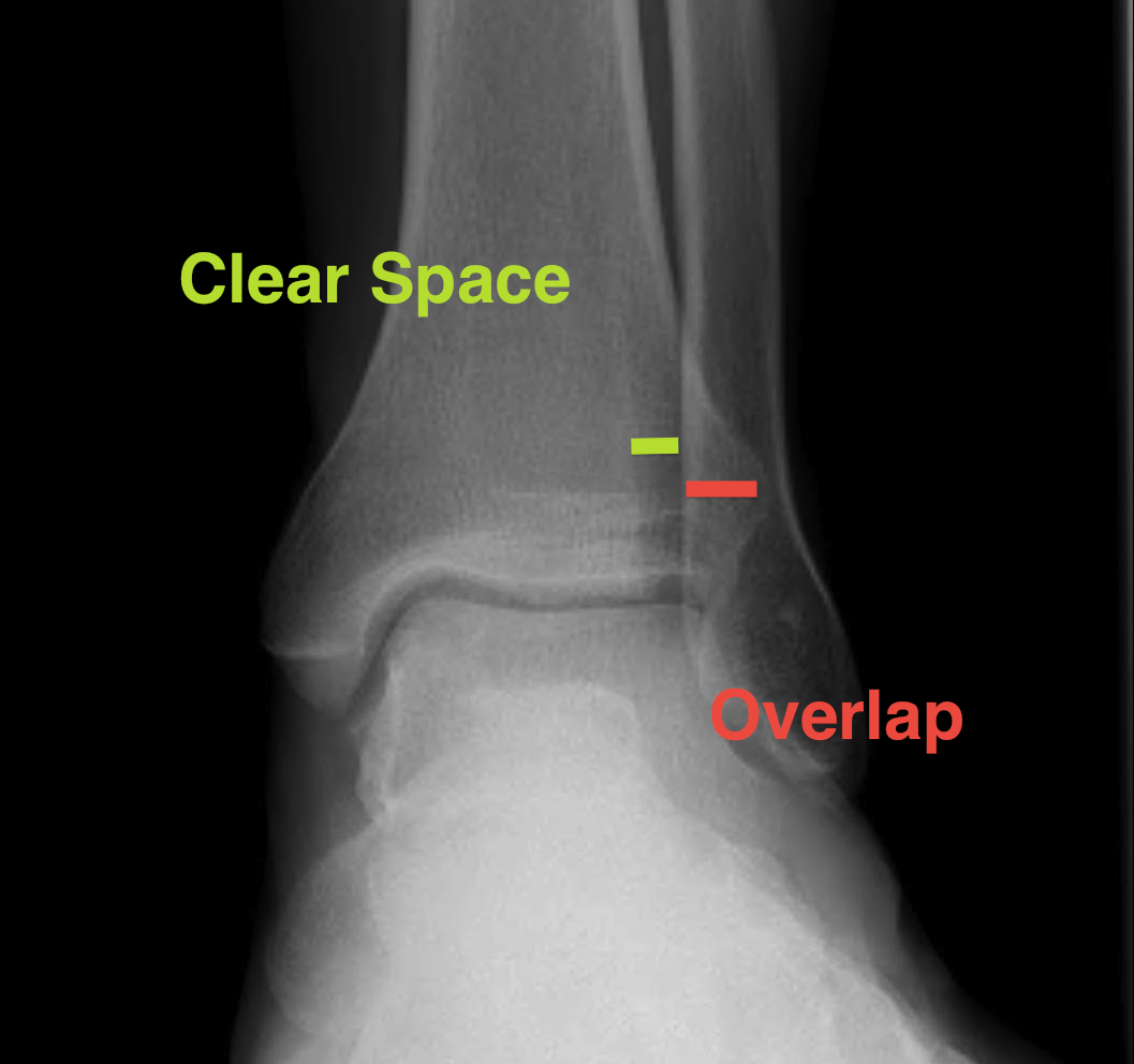 Ankle AP Xray Syndesmotic Measurements
