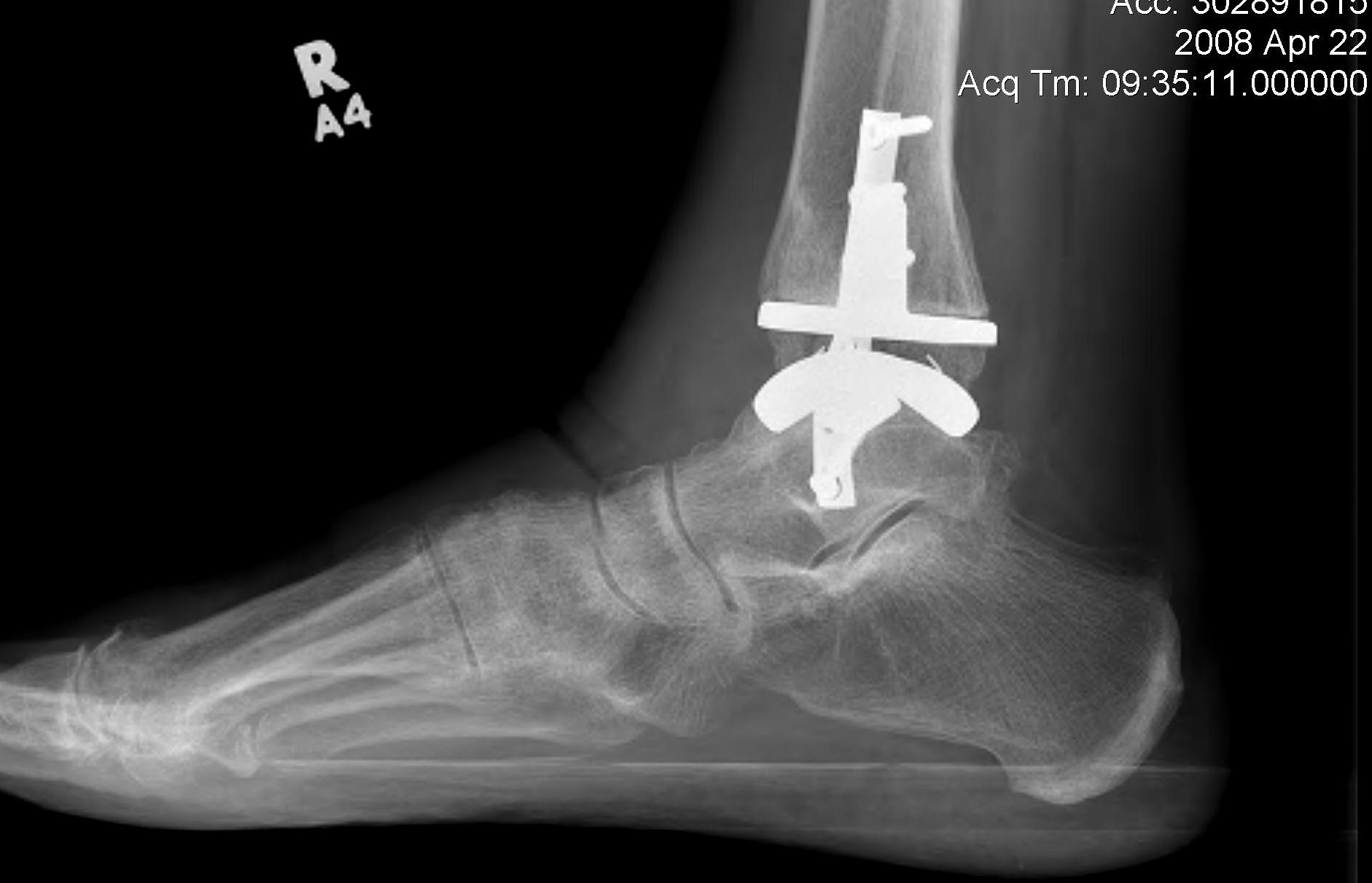 Ankle Arthroplasty Lateral