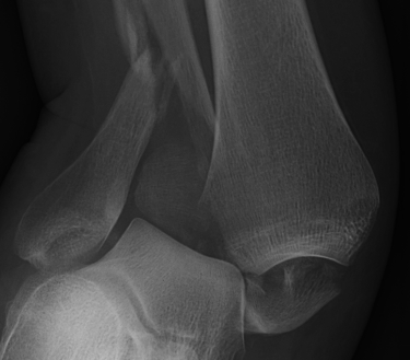 Ankle Fracture Clear Syndesmotic Injury