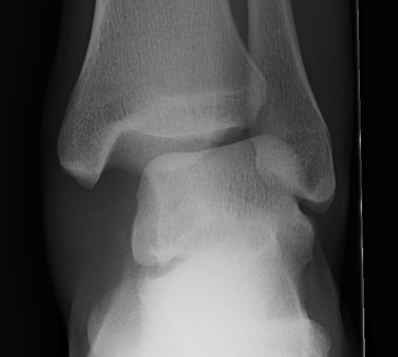 Ankle Fracture Increased Medial Clear Space 2