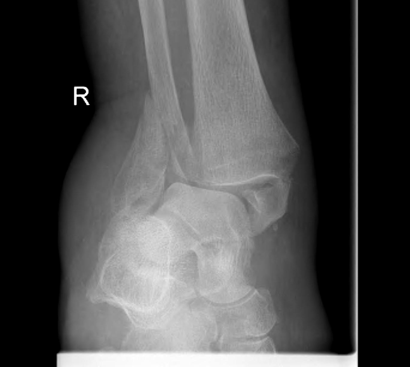 Ankle Fracture Osteoporotic