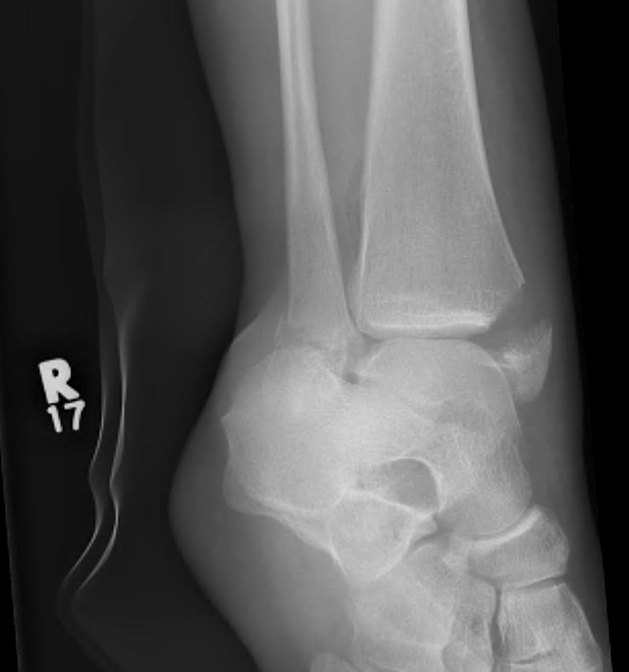Ankle Fracture Supination Adduction