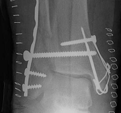 Ankle Fracture Diastasis Screw
