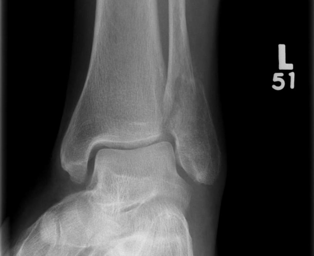 Ankle Fracture Isolated Weber B