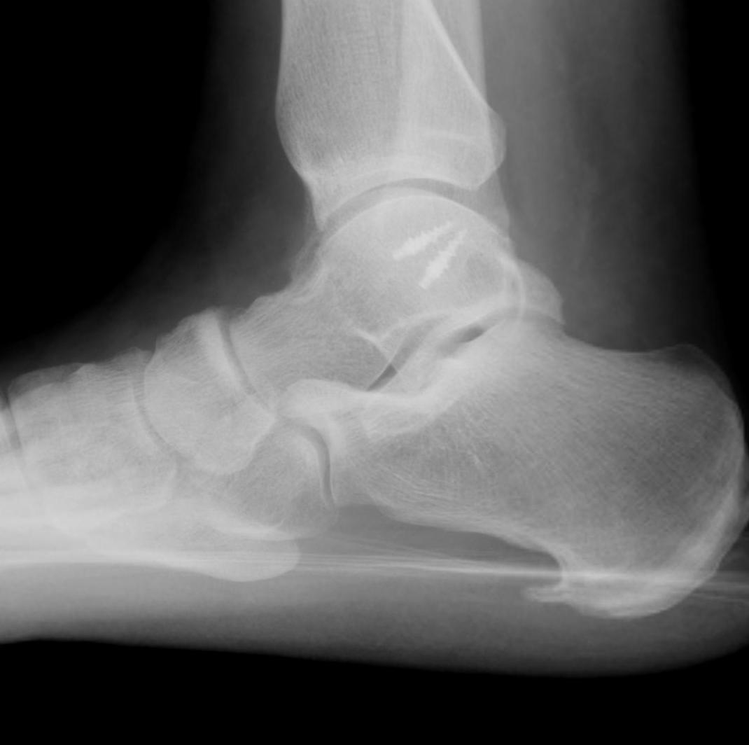 Ankle Lateral Ligament Reconstruction Lateral