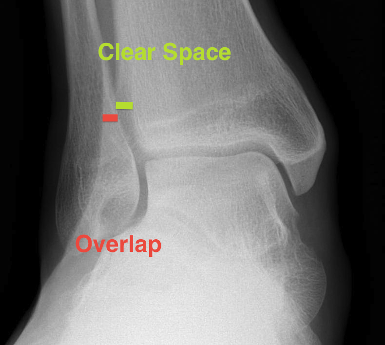 Ankle Mortice Xray Syndesmotic Measurements