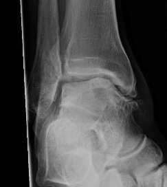 Ankle OA Post Lateral Ligament Instability