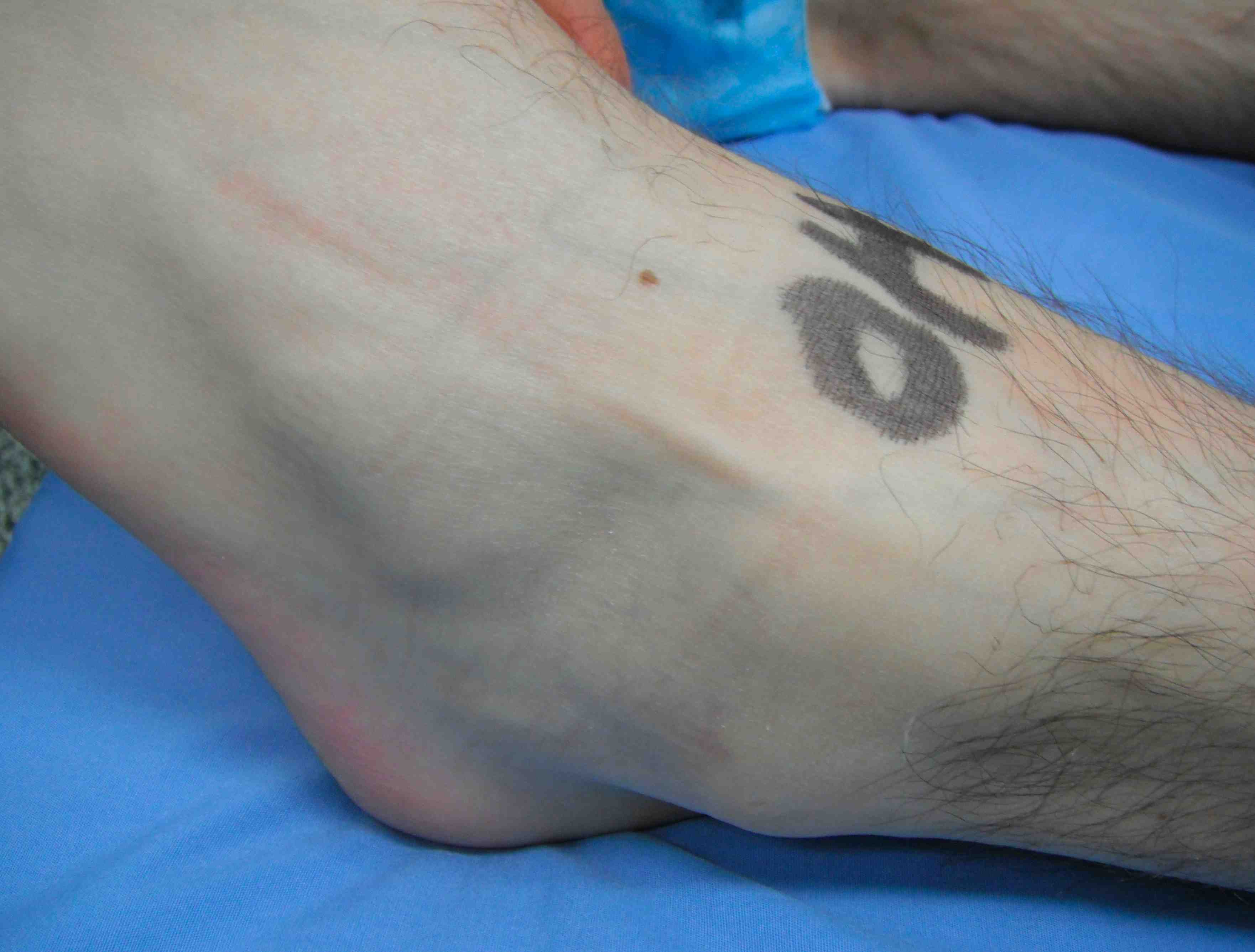 Ankle Superficial Peroneal Nerve