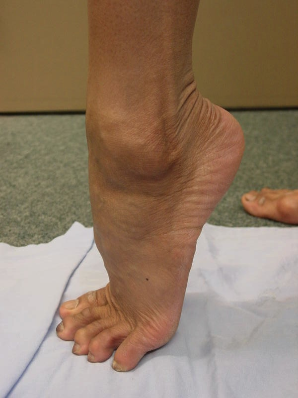 Peroneal Tendon Dislocation 1